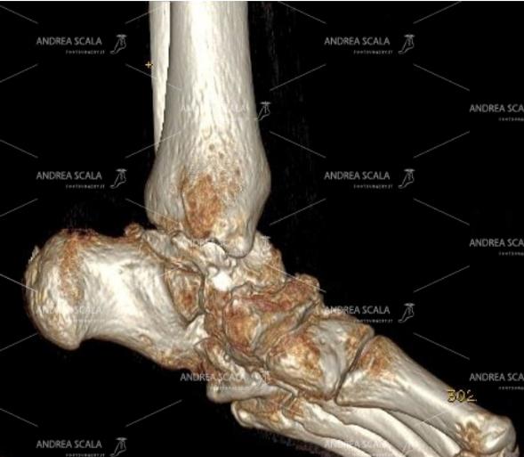 La TAC mostra un piede piatto valgo con grave artrosi presente tra astragalo e calcagno. L'artrodesi non tocca la caviglia che è indenne dalla artrosi.