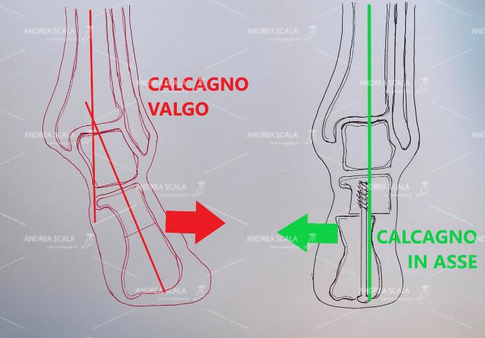 La osteotomia del calcagno consiste in un intervento poco invasivo e che permette al soggetto di recuperare i movimenti in tempi brevi. L'unica condizione per affrontare un intervento di questo tipo, però, è che la cartilagine della articolazione tra astragalo e calcagno non sia già ad uno stato di degenerazione irrimediabile.