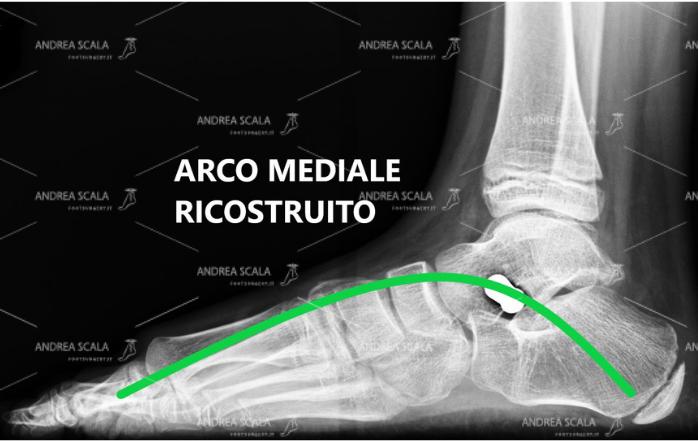 La RXgrafia post-operatoria mostra l'effetto della endortesi astragalo-calcaneale. L'arco mediale del piede è ricostruito e sollevato dal suolo.