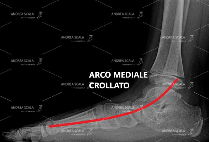 La RXgrafia mostra il grave cedimento dell'arco del piede nel piede piatto valgo pronato dell'infanzia