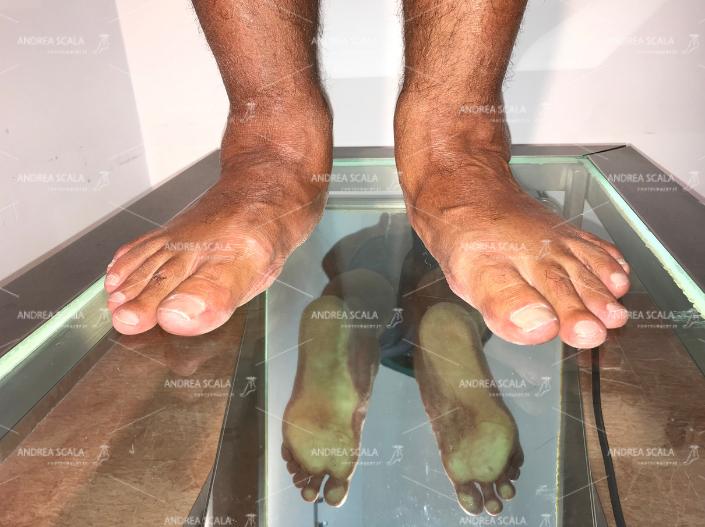 Aspetto clinico del piede piatto valgo pronato: cedimento dell'arco mediale del piede. Si vede che l'impronta del piede è allargata perché le ossa toccano il suolo.