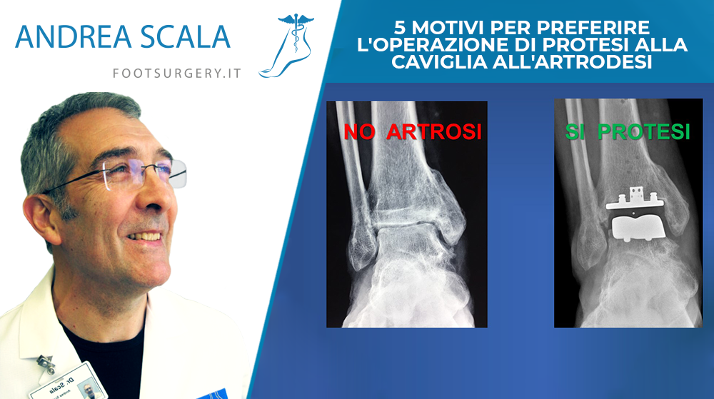 5 motivi per preferire l'operazione di protesi alla caviglia all'artrodesi