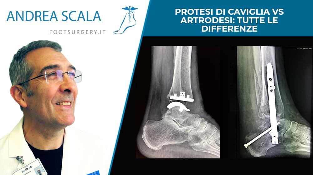 Protesi di caviglia vs artrodesi: tutte le differenze