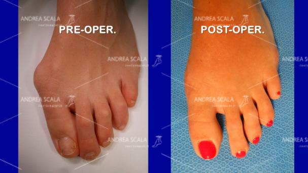 L'illustrazione mette a confronto come si presenta l'alluce valgo prima dell'intervento e il risultato ottenuto dopo l'intervento con la tecnica del dottor Andrea Scala.