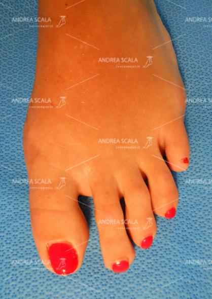 La foto mostra il risultato dell'intervento ottenuto con la tecnica mini-invasiva del dott. Andrea Scala.
