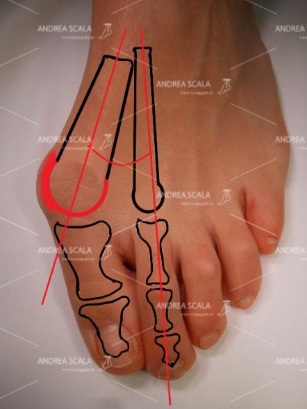 """Un altro criterio di gravità dell'alluce è l'angolo di divaricazione tra 1° e 2° metatarso. Questo spiega perché la pianta del piede è """"allargata"""". Si vede molto bene nelle RXgrafie,"""