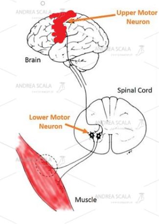 Lo schema della paralisi muscolare dovuta all'ictus. Le cellule cerebrali sono morte dopo l'ictus e l'elettricità che passa dall'altra parte del corpo non c'è più. I neuroni che sono nel midollo spinale rimangono privi di ordini superiori. I muscoli degli arti ricevono ordini disordinati e non regolati dal midollo spinale. Per questo motivo alcuni muscoli sono immobili e paralitici e altri sono ipertonici e spastici.