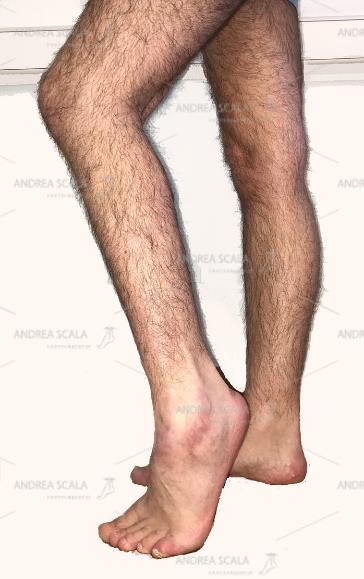 """La foto mostra l'aspetto clinico del piede equino paralitico. I professionisti della """"riabilitazione"""" vedono la deformità ma si ostinano nell'attesa di una """"rigenerazione"""" che non potrà mai avvenire."""