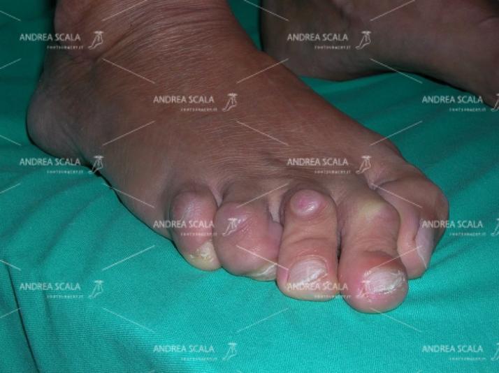 """PRE-OPERATORIA La paralisi ha causato la grave deformità """"en griffe"""" delle dita. Callosità molto dolorose nelle scarpe. Paziente di 42 anni. Arto inferiore destro affetto da emiparesispastica neonatale. Grave contrattura """"en griffe"""" di tutte le dita. La deambulazione è molto difficoltosa e dolorosa."""