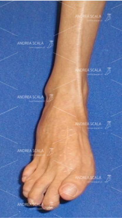 POST-OPERATORIA Le dita sono distese, non ci sono più le callosità dolorose. Si vede la tensione dei tendini sotto la cute dopo il trapianto tendineo.