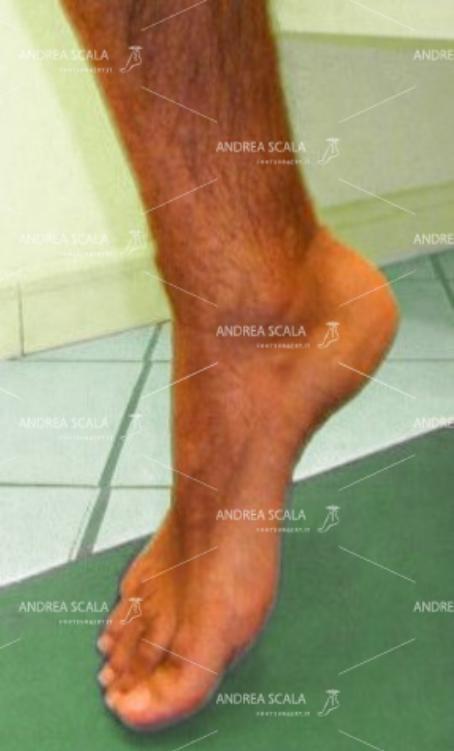 """Paziente di 44 anni, affetto da piede """"ciondolante"""", a seguito di lesione traumatica del nervo SPE e del nervo SPI."""