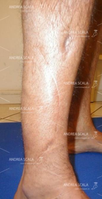 L'incisione chirurgica mostra la sede del prelievo del muscolo Peroneo Breve dalla antero-laterale della gamba alla regione antero-mediale del piede.