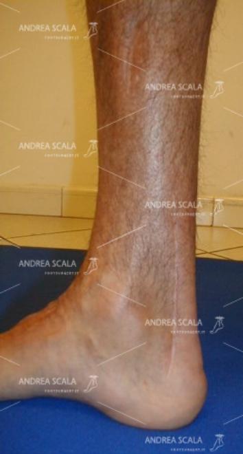 L'incisione chirurgica sul t. d'Achille mostra la sede dell'allungamento.