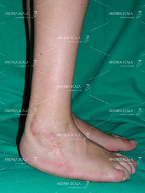 PRE OPERATORIO Piede equino, il calcagno non tocca il suolo. Paziente di 49 anni, affetta da esiti di polio. Piede equino-varo-supinato.