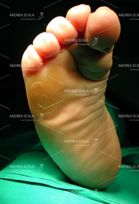 PRE OPERATORIO La foto della pianta del piede mostra la callosità dolorosa sotto il 5° metatarso. La paziente appoggia da anni il peso del corpo solo in quel punto. Appoggio molto doloroso, prevalente sulla testa del 5° metatarso. Impossibile ottenere lo scarico della testa del 5° a causa dell'equinismo