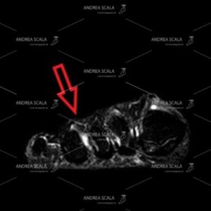 Risonanza magnetica . la freccia indica il punto in cui si trova il Neuroma di Morton