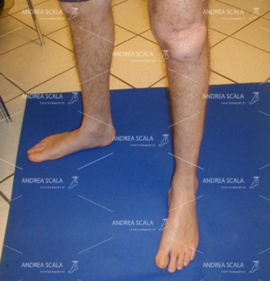 Dopo l'intervento il piede non è varo- supinato. Si vede il corretto appoggio del piede.