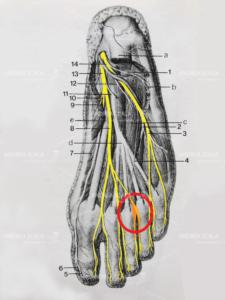 neuroma-di-morton-2.jpeg
