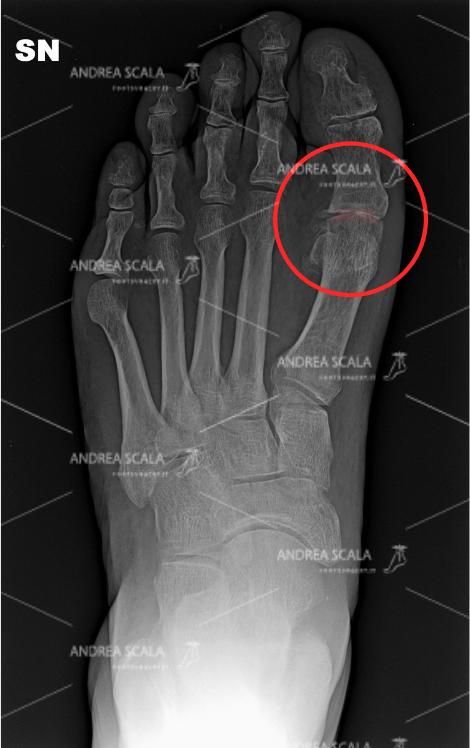 La radiografia mostra l'artrosi a carico dell'articolazione metatarso-falangea, che si trova alla base dell'alluce e sulla testa del primo metatarso