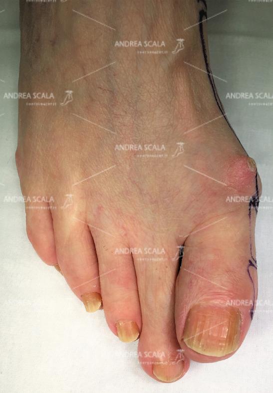La foto mostra la tumefazione che si può sviluppare sul dorso dell'articolazione, nei soggetti che soffrono di alluce rigido.
