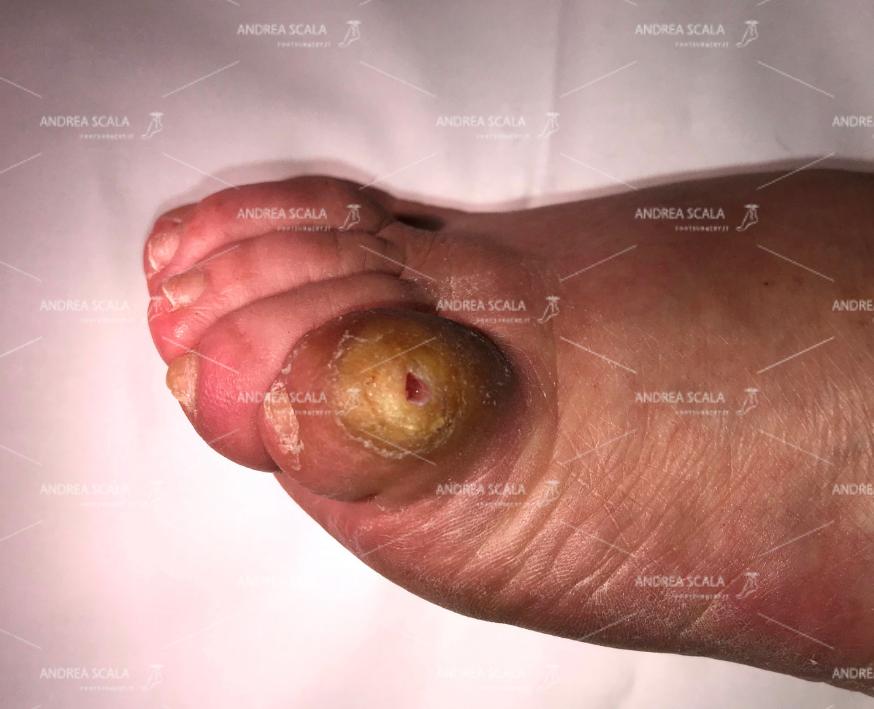 Si vede il foro sul 5° dito. I germi ed i batteri trovano la porta aperta per entrare nel corpo della paziente.