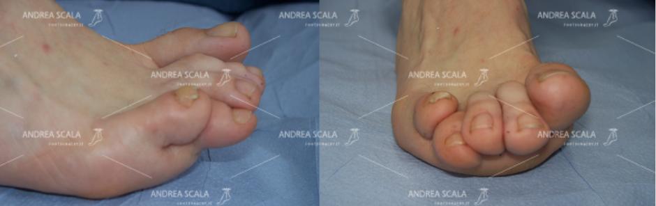 Lo squilibrio muscolo-tendineo tra estensori e flessori delle dita è la causa più frequente delle deformità delle dita del piede.