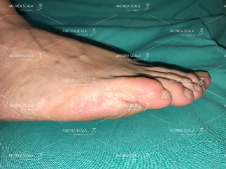 La foto mostra la normale anatomia del 5° dito del piede. Il costante equilibrio muscolo-tendineo tra estensori e flessori consente la funzione delle dita e la normale posizione.