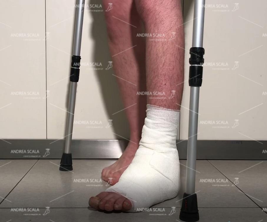 Nella visione obliqua si vede che il paziente appoggia normalmente il piede al suolo. Questo risultato non si può ottenere con la fisioterapia né con il botulino.