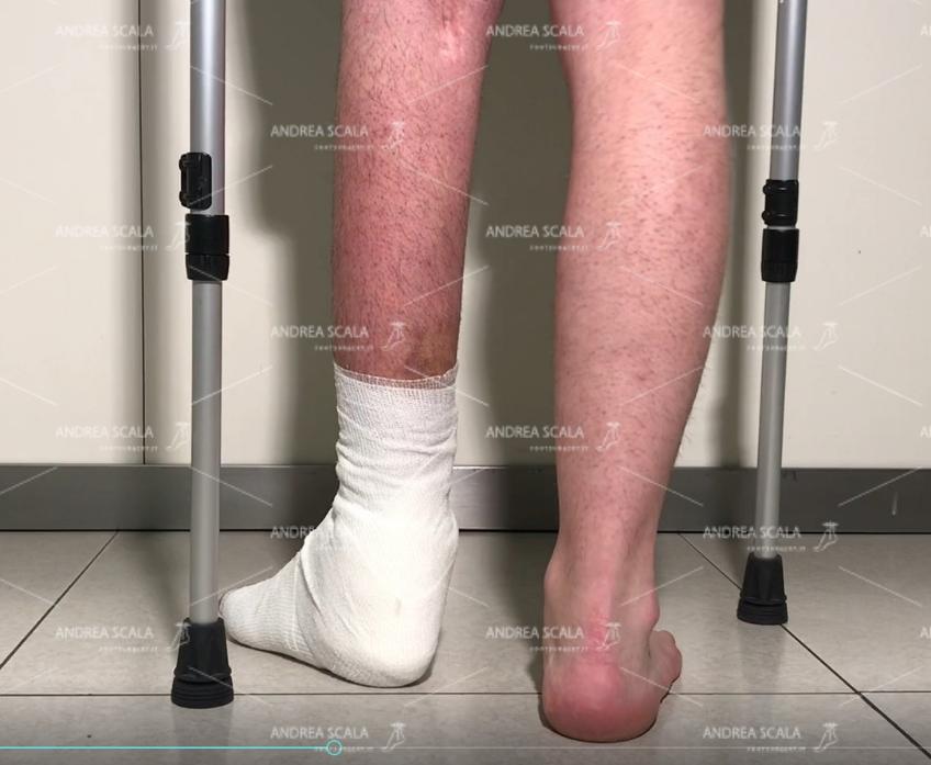 Nella visione posteriore si vede che il piede non è equino. Questo risultato non si può ottenere con la fisioterapia né con il botulino.