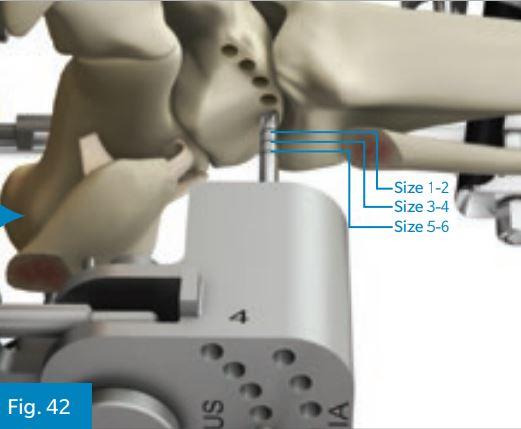 Il blocco di taglio metallico è la guida che stabilisce la taglia della protesi. Basandosi sulla guida si iniziano a praticare fori di 4.5 mm nell'astragalo.