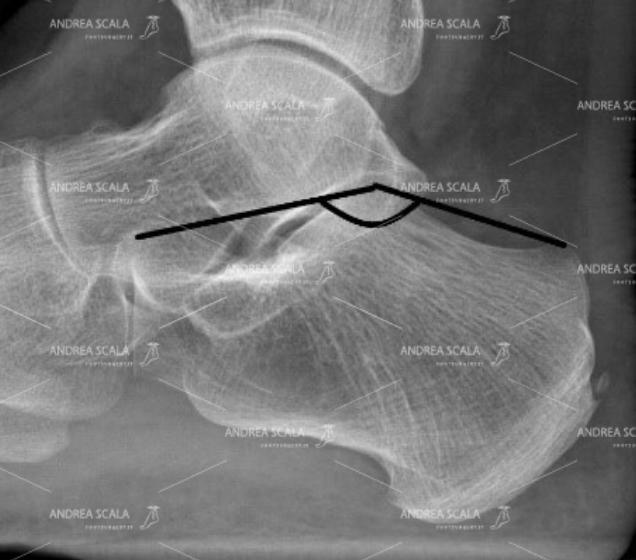 FIGURA 1 Il calcagno sopporta tutto il peso del corpo. L'articolazione tra calcagno e astragalo è la prima che tocca il suolo quando si cammina. Ecco perché va accuratamente ricostruita.