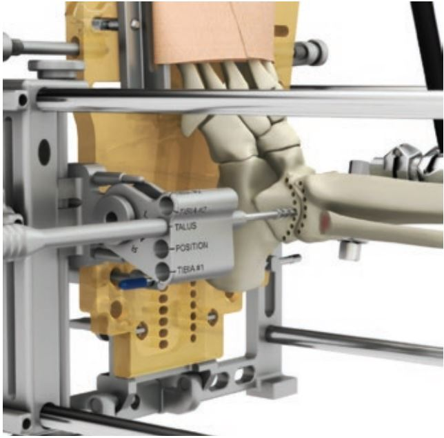 L'apparato esterno guida la perforazione del contorno articolare dell'astragalo e della tibia.