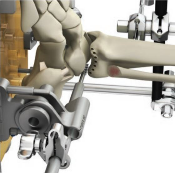 Una fresa di calibro maggiore completa la resezione dell'astragalo eliminando l'osso del paziente. Il procedimento è prestabilito ed identico per tutti i pazienti.