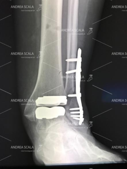 La RXgrafia anteriore fa vedere che la ricostruzione del perone con placca e viti alle volte non guarisce e può risultare instabile. Il paziente già si sottopone ad un intervento tanto impegnativo quale la protesi di caviglia, non andrebbe sottoposto ad interventi supplementari che presentano a loro volta elementi di rischio.