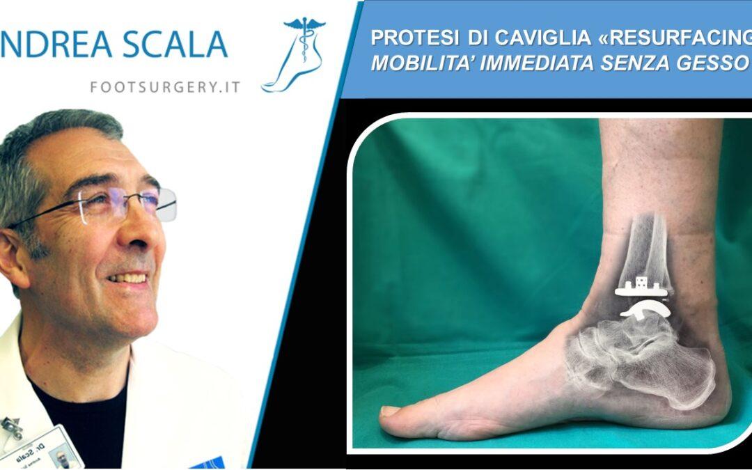 """Protesi di caviglia """"resurfacing"""": mobilità immediata senza gesso"""
