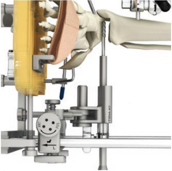 La figura mostra la visione anteriore della posizione della fresa che partendo dalla posizione laterale asporta la superficie astragalica e asporta la superficie tibiale. La fresa deve stare attenta a non toccare il malleolo tibiale. Il procedimento è prestabilito ed identico per tutti i pazienti.