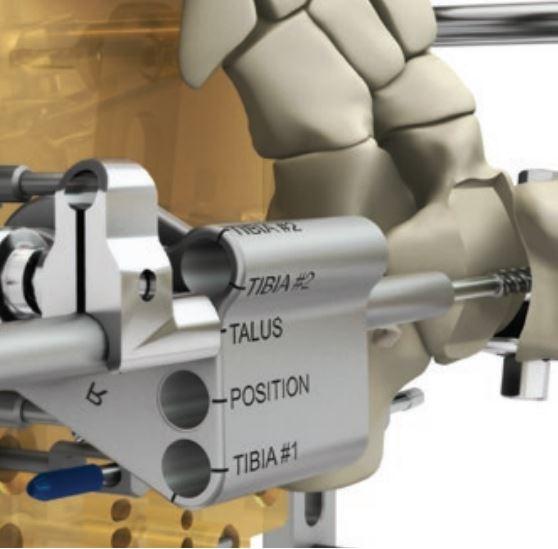 La figura mostra come viene asportato l'osso del paziente dall'astragalo e preparata la superficie dell'astragalo. Il procedimento è prestabilito ed identico per tutti i pazienti.