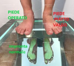 La foto mostra che il piede operato in età giovanile torna alla normalità. Infatti l'impronta del piede operato è normale, mentre l'impronta del piede pronato valgo è patologica. Il piede pronato valgo giovanile viene corretto senza toccare le articolazioni.