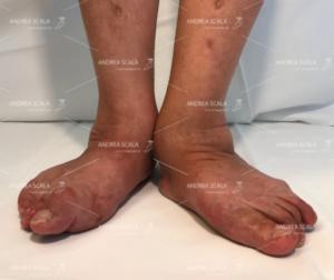 La deformità piede pronato valgo non curata in tempo diventa una deformità grave e difficile da curare nell'anziano.