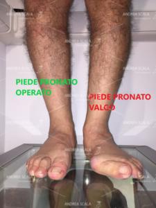 La foto mostra la visione anteriore di un paziente che è stato operato in età adulta. Si vede il confronto tra il piede pronato grave e il piede operato. E' stato corretto anche l'alluce valgo.