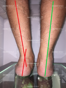 La foto mostra la visione posteriore dello stesso paziente in età adulta con piede pronato grave a confronto con il piede operato. Si nota che il calcagno del piede pronato grave è deviato in valgo. Il calcagno del piede operato è in asse.