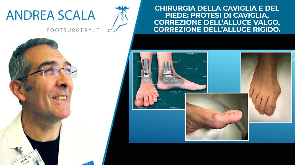 Chirurgia della caviglia e del piede: Protesi di caviglia, correzione dell'alluce valgo, correzione dell'alluce rigido.