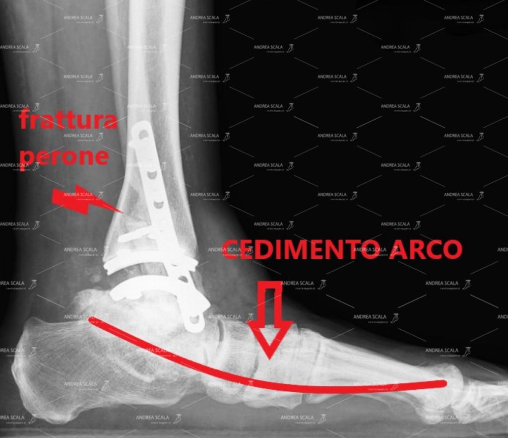 protesi-caviglia-piede-pronato 2.jpeg