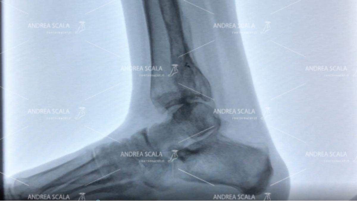 ankle-arthrosis-post-trauma-5.jpg