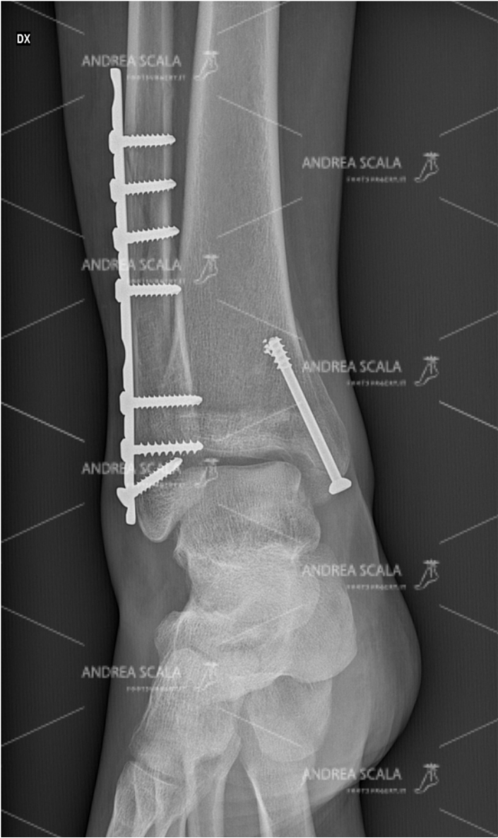 ankle-fracture-RX-anterior-2