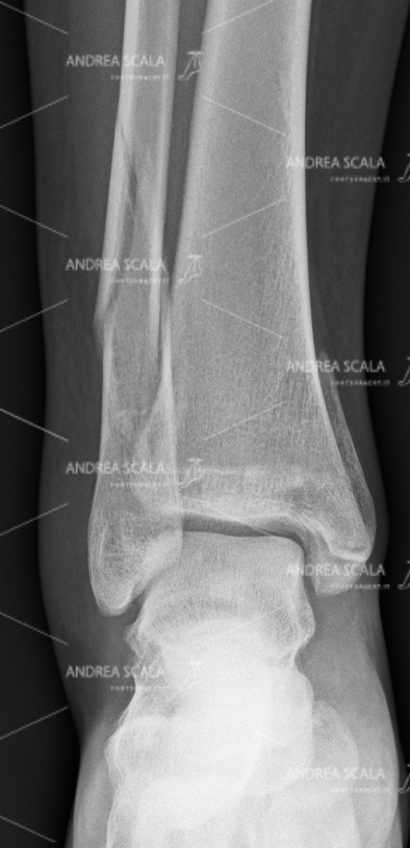 ankle-fracture-anterior-1.jpg