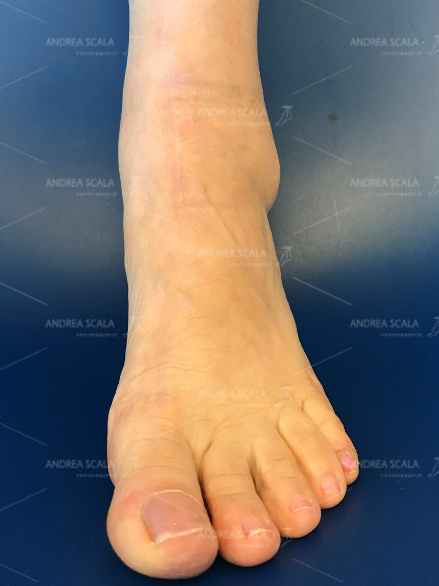 ankle-replacement-anterior-approach-0.jpg