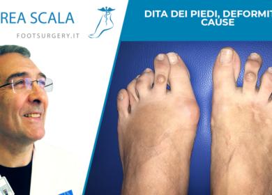 Dita dei piedi, deformità e cause