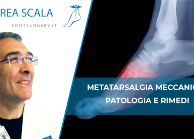 Metatarsalgia Meccanica: patologia e rimedi