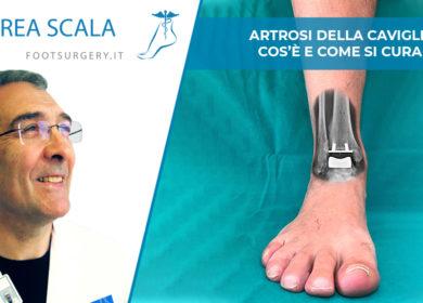 Artrosi della caviglia: cos'è e come si cura